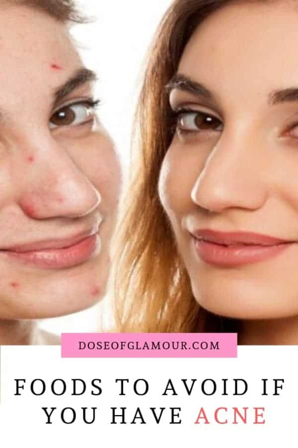 OODS-TO-AVOID-IF-YOU-HAVE-ACNE-1